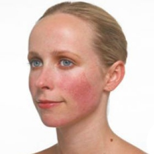 Symptoms-of-Acne-Rosacea