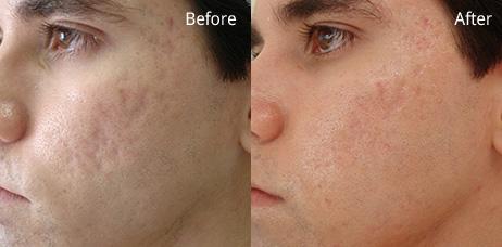 laserowe usuwanie blizn