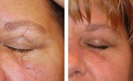 revitol scar cream przed i po
